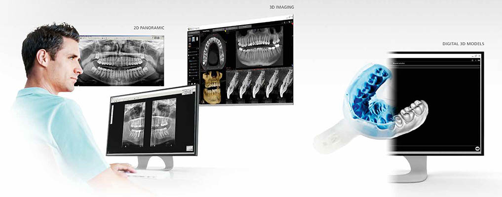 Tac-Dental-Scaner-3D-2